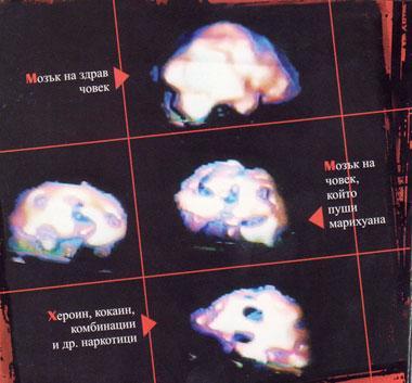 Снимка на мозъци на пушещи марихуана